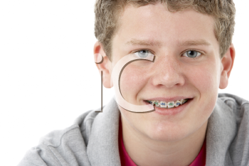 Royalty Free Photo of a Young Boy With Braces