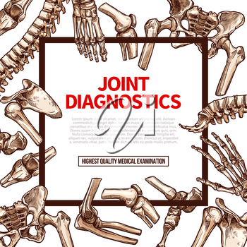 Joints diagnostics or human body medical examination poster. Vector joint bones of spine, leg or foot ankle and hand or arm wrist for health therapy or x-ray orthopedic and surgery hospital design