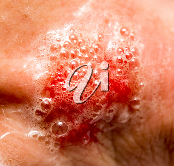 blood on the skin from a cut in hydrogen peroxide .