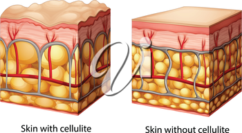 Illustration of skin cross section showing cellulite