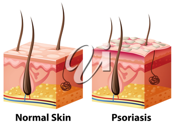 Human skin diagram with normal and psoriasis illustration