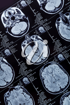 Magnetic resonance imaging photography of human brain closeup