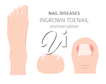 Nail diseases. Onychocryptocosis, ingrown toenail. Medical infographic design.  Vector illustration