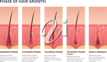 Medical infographic illustrations of hair growth cycle. Vector pictures of human biology. Hair human banner, anatomy root follicle
